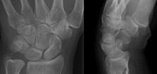 Fractured Wrist Xray